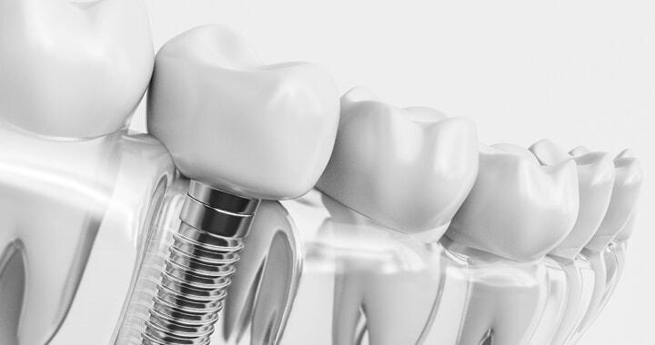 Modern dental implant 3D model